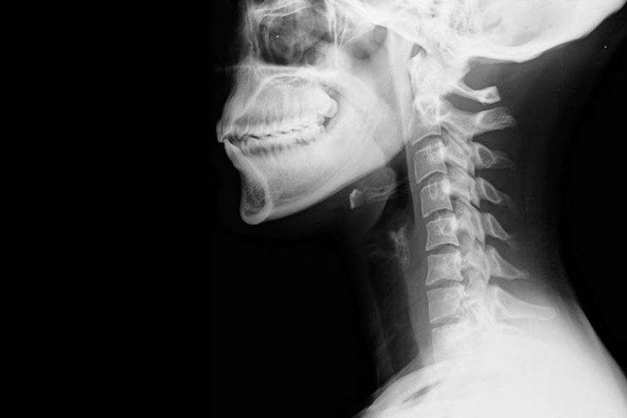 artrosi radiografia